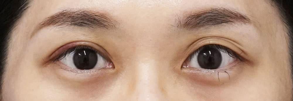 切らない眼瞼下垂 1週間後のAfterの写真