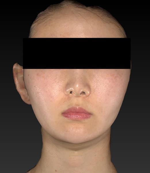 小顔脂肪吸引(ホホ・アゴ下・ほうれい線上) 手術前 正面