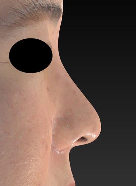鼻尖縮小、軟骨移植、ストラット、鼻翼縮小(内側+外側) 右側面 3ヶ月後