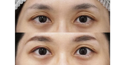 切らない眼瞼下垂 1週間後