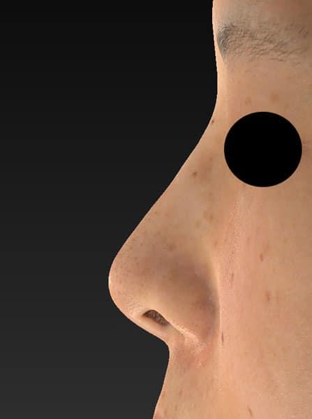 鼻尖縮小、軟骨移植 左側面 手術前