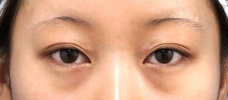 もとびアイプラチナム 1か月後(開眼、閉眼)のBefore写真