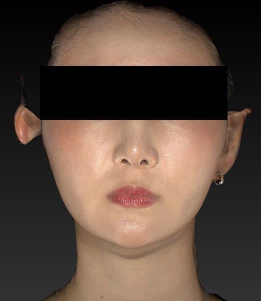 小顔脂肪吸引(ホホ・アゴ下・ほうれい線上) 半年後 正面