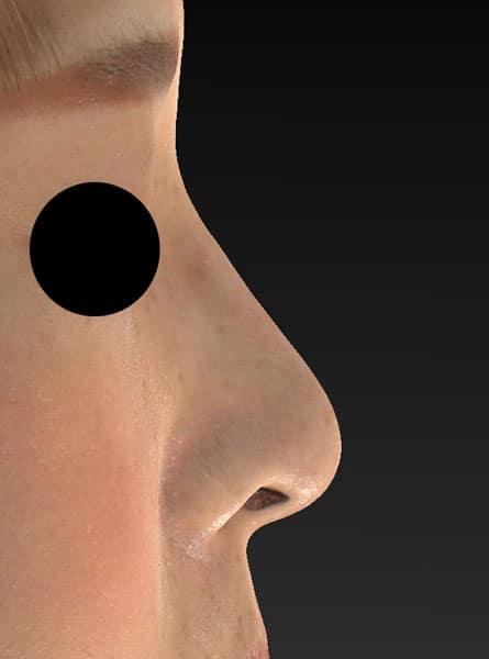鼻尖縮小、軟骨移植 右側面 半年後