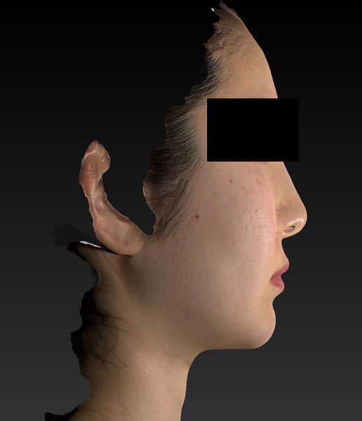 小顔脂肪吸引(ホホ・アゴ下・ほうれい線上) 手術前 右側面