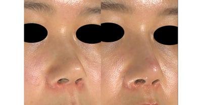 鼻シリコンプロテーゼ 半年後