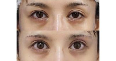 下眼瞼下制術(切るタレ目)、目の下脂肪取り 1週間後、半年後