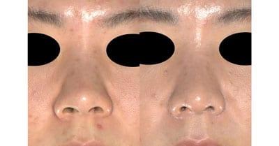 鼻尖縮小、軟骨移植、ストラット、鼻翼縮小(内側+外側) 3ヶ月後