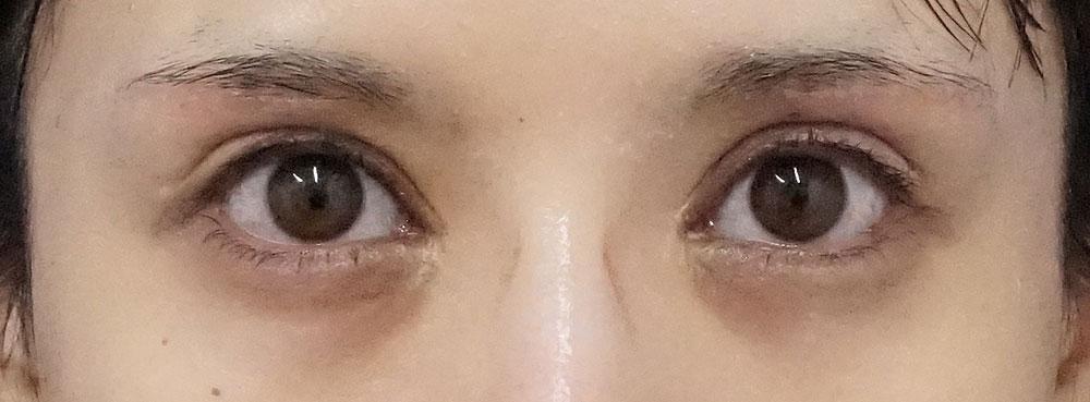 下眼瞼下制術(切るタレ目)、目の下脂肪取り 半年後のAfterの写真