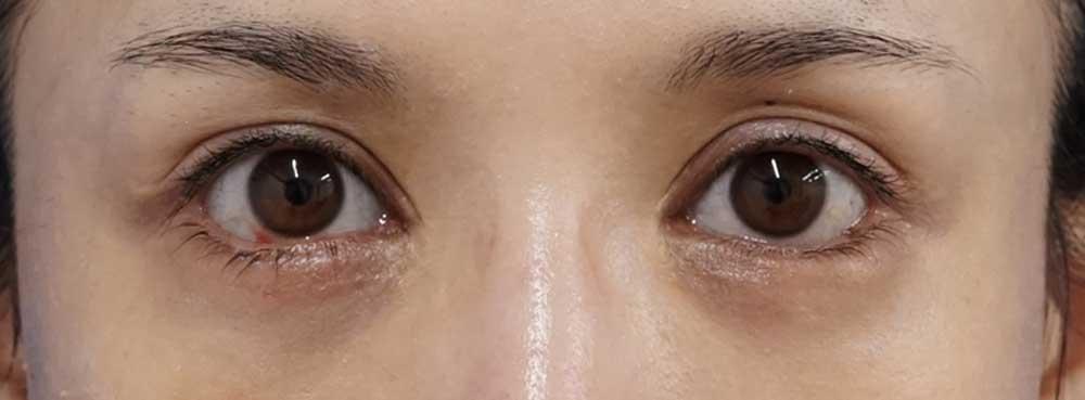 下眼瞼下制術(切るタレ目)、目の下脂肪取り 1週間後のAfterの写真