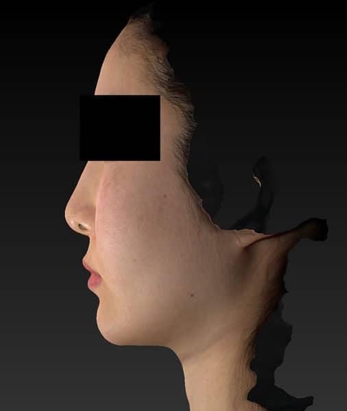 小顔脂肪吸引(ホホ・アゴ下・ほうれい線上) 手術前 左側面