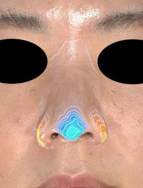 鼻尖縮小、軟骨移植、ストラット、鼻翼縮小(内側+外側) 正面 3D解析