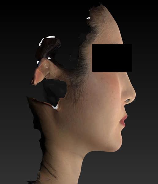 小顔脂肪吸引(ホホ・アゴ下・ほうれい線上) 半年後 右側面