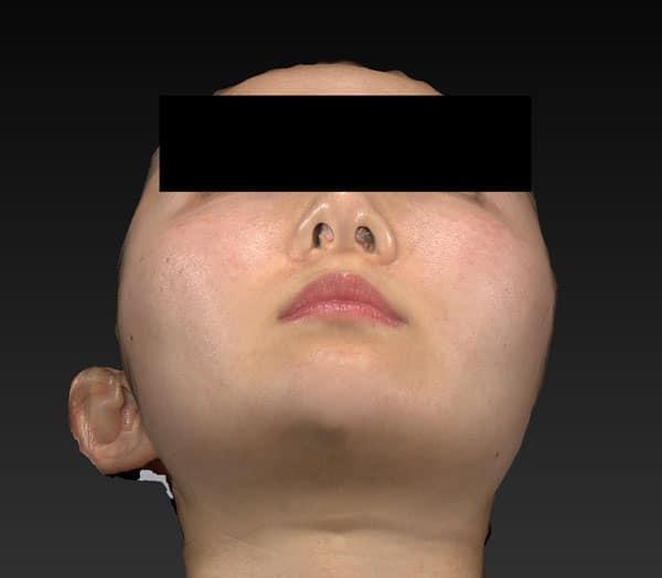 小顔脂肪吸引(ホホ・アゴ下・ほうれい線上) 手術前 下から
