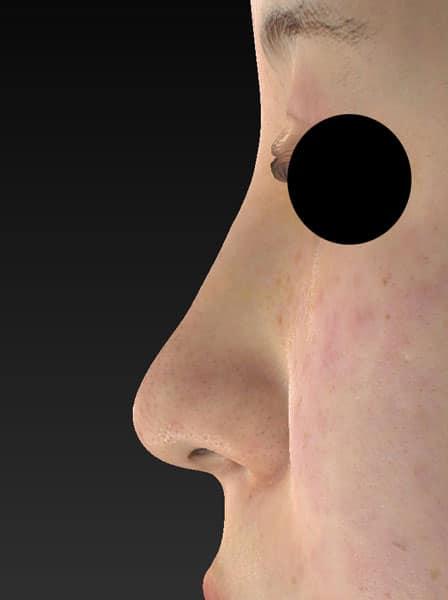 切らない鼻尖延長(ミスコ)8本 左側面 1週間後