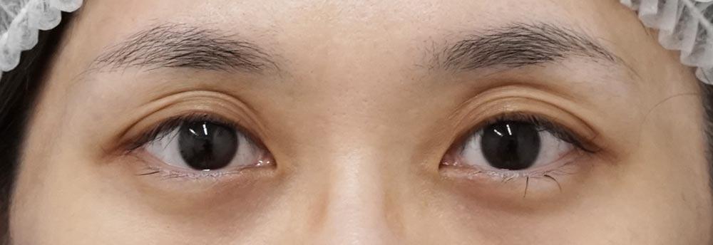 切らない眼瞼下垂 1週間後のBefore写真