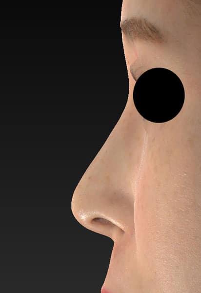 鼻尖縮小、軟骨移植、ストラット 左側面 半年後