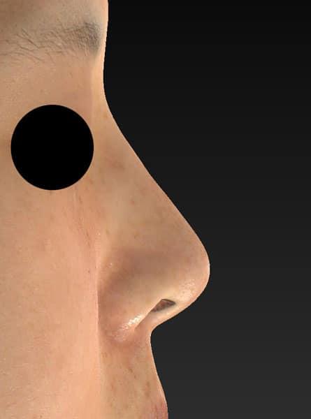 鼻尖縮小、軟骨移植 右側面 手術前