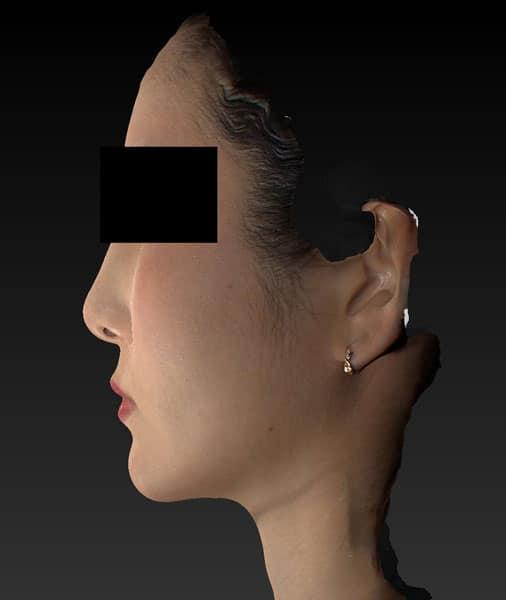 小顔脂肪吸引(ホホ・アゴ下・ほうれい線上) 半年後 左側面