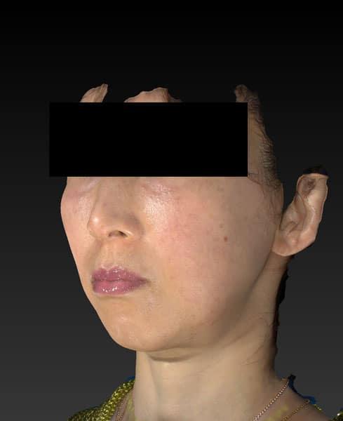 バッカルファット除去術 3ヶ月後 左斜めのAfterの写真