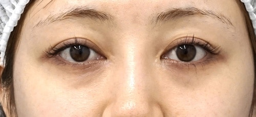 目の下脂肪取り6か月後のBefore写真