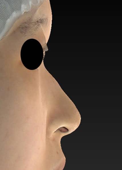 鼻尖縮小、I型プロテーゼ 3ヶ月後 右側面のBefore写真