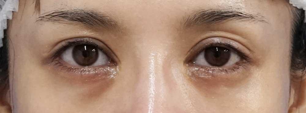 下眼瞼下制術(切るタレ目)、目の下脂肪取り 半年後のBefore写真
