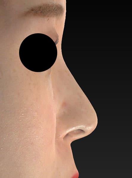 鼻尖縮小、軟骨移植、ストラット 右側面 半年後