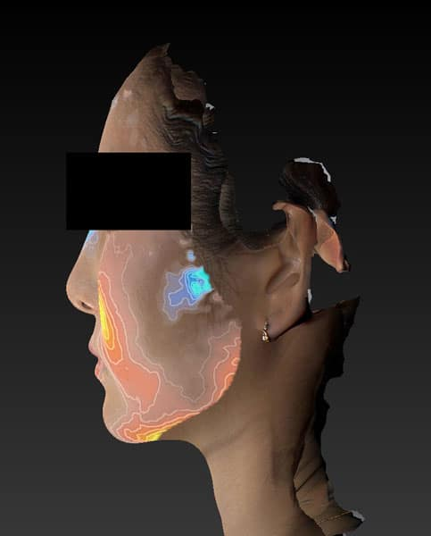 小顔脂肪吸引(ホホ・アゴ下・ほうれい線上) 半年後変化 左側面