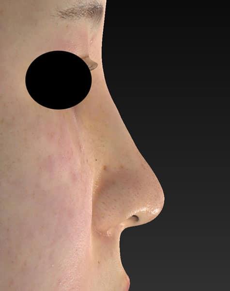 切らない鼻尖延長(ミスコ)8本 右側面 1週間後