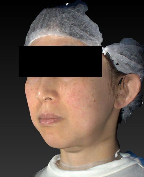 バッカルファット除去術 3ヶ月後 左斜めのBefore写真