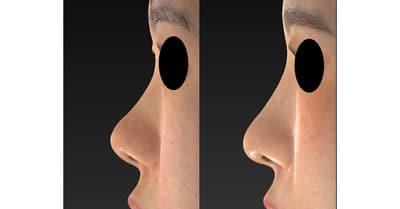 鼻尖縮小、軟骨移植、I型プロテーゼ 半年後