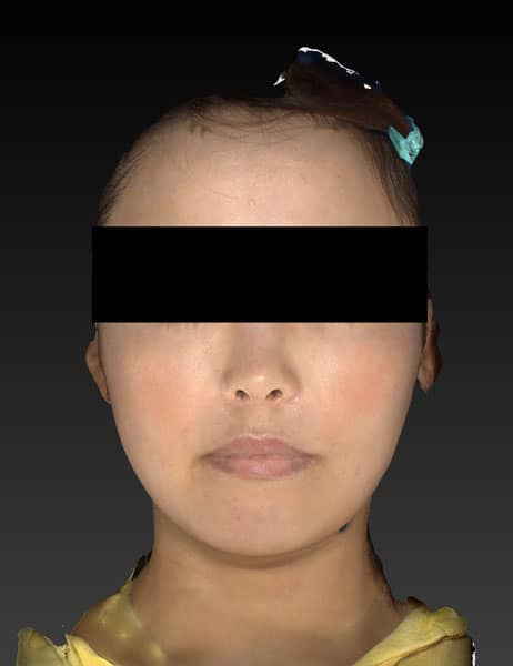 小顔脂肪吸引(ホホ・アゴ下・ほうれい線上) 半年後 正面のAfterの写真
