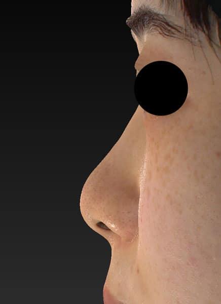 鼻尖縮小(3D法)、ストラット、軟骨移植 手術前 左側面