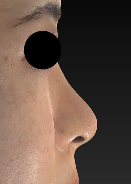 鼻尖縮小(3D法)、ストラット、軟骨移植 半年後 右側面