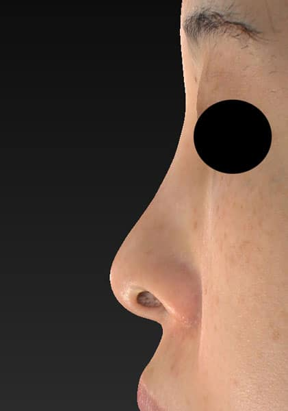切らない鼻尖延長(ミスコ)8本、鼻クレヴィエルコントア 1週間後 左側面のBefore写真