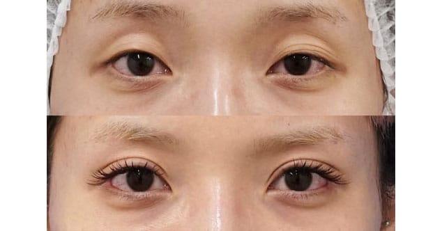 全切開、眼瞼下垂、目尻切開、切らないタレ目 3ヶ月後