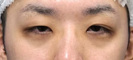眉下切開、目頭切開(Z形成)3か月後のBefore写真
