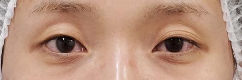 全切開、眼瞼下垂、目尻切開、切らないタレ目 3ヶ月後のBefore写真