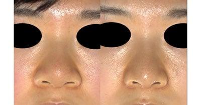 鼻尖縮小(3D法)、軟骨移植、ストラット、鼻翼縮小(内側法+外側法) 半年後
