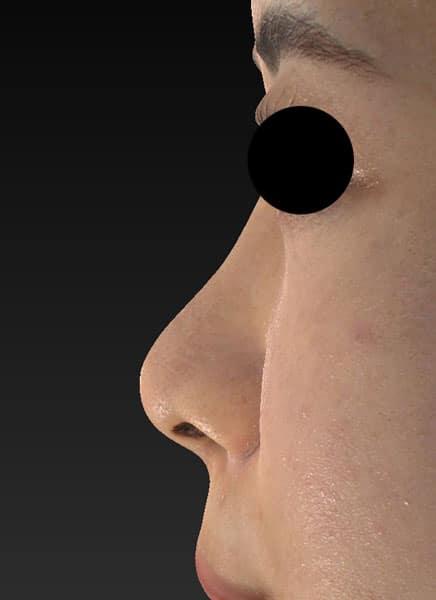 鼻尖縮小(3D法)、ストラット、軟骨移植 半年後 左側面