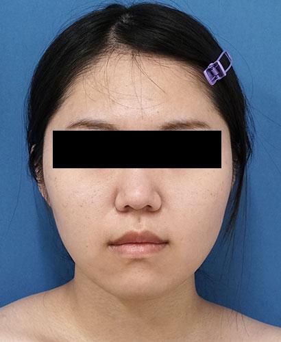 脂肪吸引(ホホ・アゴ下・ほうれい線上) 半年後 正面のAfterの写真