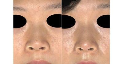 鼻翼縮小(内側法+外側法) 半年後