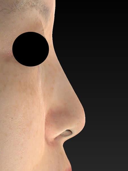 鼻尖縮小、軟骨移植、ストラット 半年後 右側面のBefore写真