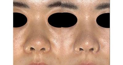 鼻尖縮小(3D法)、ストラット、軟骨移植 半年後