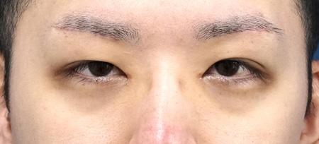 眉下切開、目頭切開(Z形成)3か月後のAfterの写真