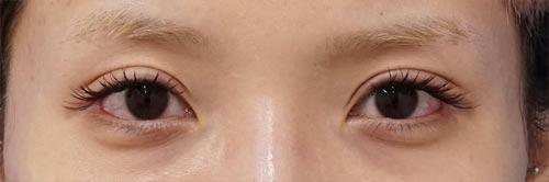 全切開、眼瞼下垂、目尻切開、切らないタレ目 3ヶ月後のAfterの写真