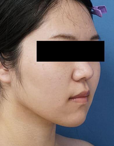 脂肪吸引(ホホ・アゴ下・ほうれい線上) 半年後 右斜めのAfterの写真