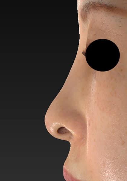 切らない鼻尖延長(ミスコ)8本、鼻クレヴィエルコントア 1週間後 左側面のAfterの写真