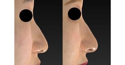 鼻尖縮小、軟骨移植、ストラット 半年後